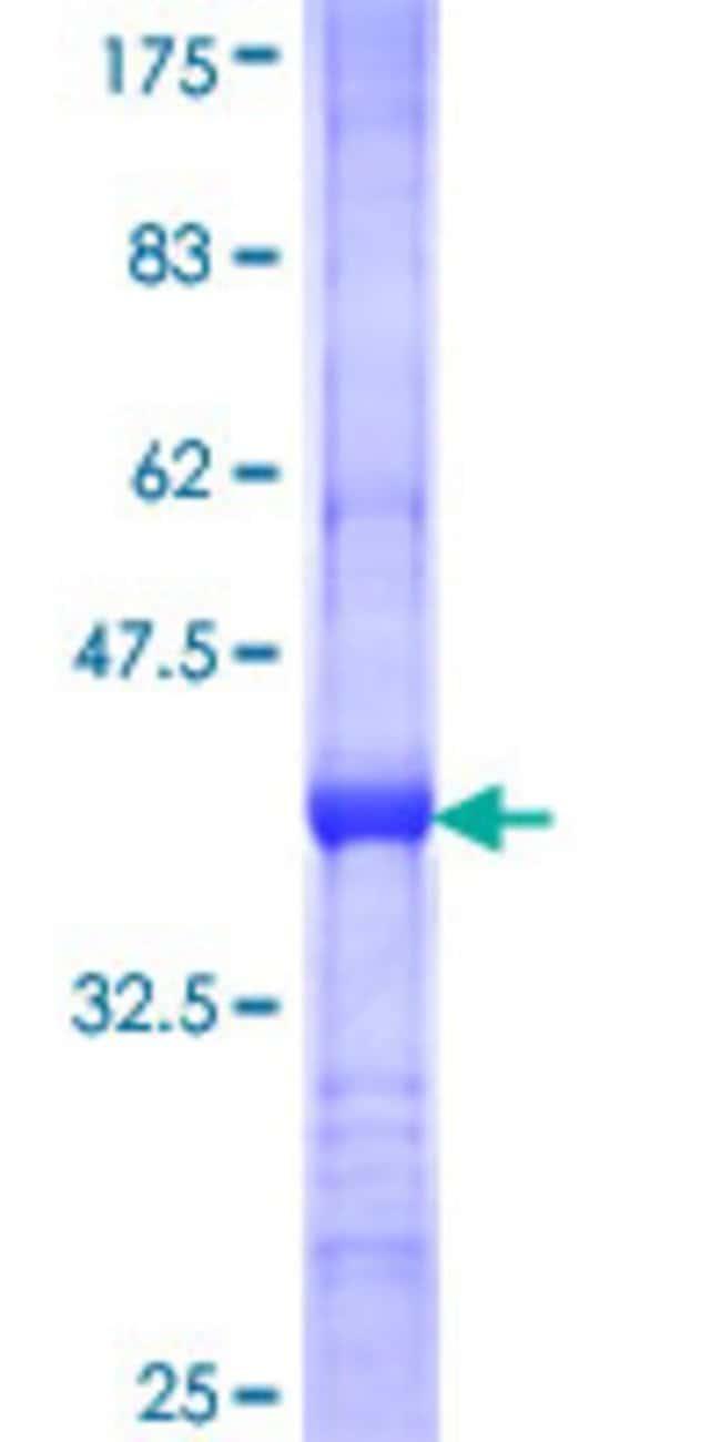 AbnovaHuman UBASH3A Partial ORF (NP_001001895, 524 a.a. - 623 a.a.) Recombinant