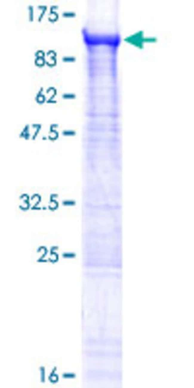 Abnova™Human ZFYVE1 Full-length ORF (NP_067083.1, 1 a.a. - 777 a.a.) Recombinant Protein with GST-tag at N-terminal 10μg Abnova™Human ZFYVE1 Full-length ORF (NP_067083.1, 1 a.a. - 777 a.a.) Recombinant Protein with GST-tag at N-terminal