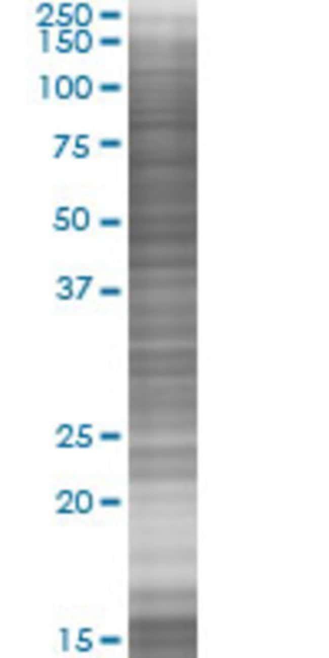 Abnova ZFYVE1 293T Cell Transient Overexpression Lysate (Denatured) (T03)