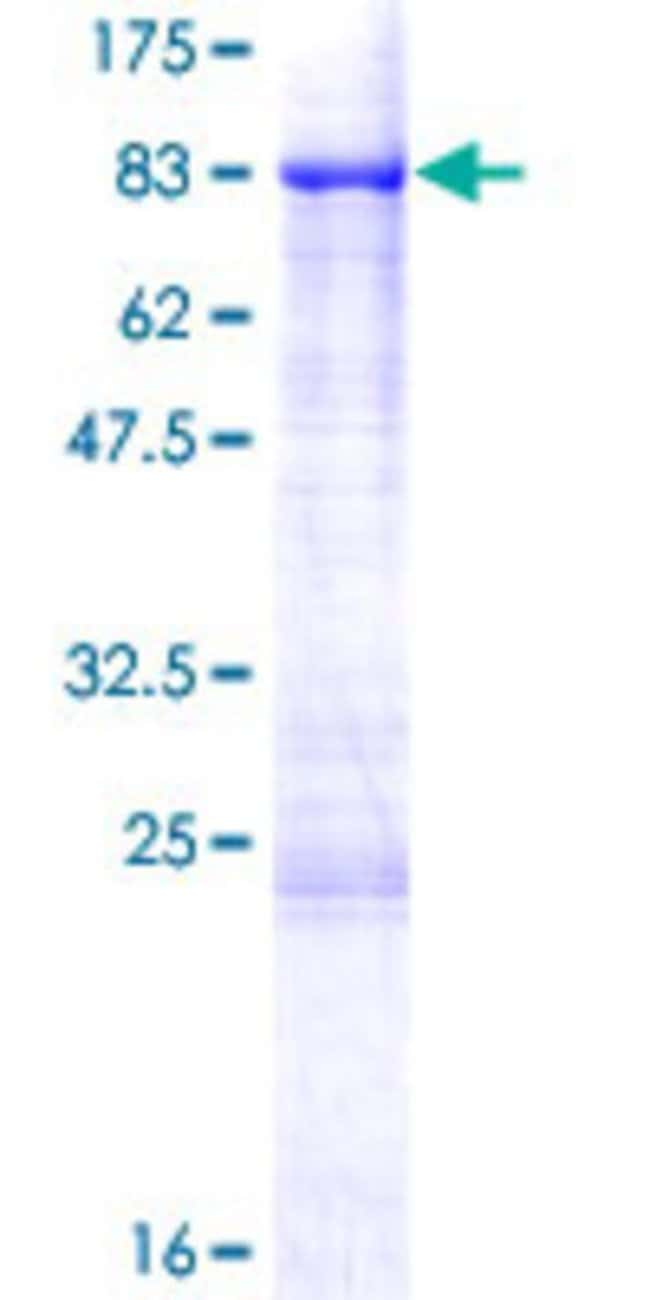 Abnova™Human SHC3 Full-length ORF (NP_058544.2, 1 a.a. - 594 a.a.) Recombinant Protein with GST-tag at N-terminal 25μg Abnova™Human SHC3 Full-length ORF (NP_058544.2, 1 a.a. - 594 a.a.) Recombinant Protein with GST-tag at N-terminal