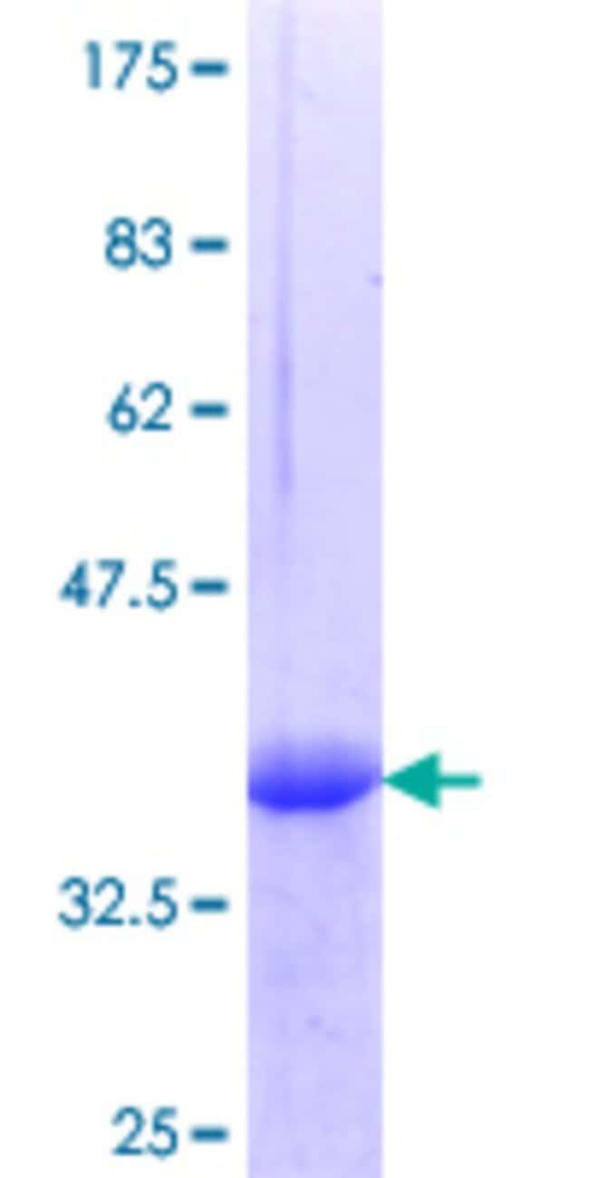 AbnovaHuman SHC3 Partial ORF (NP_058544.2, 381 a.a. - 480 a.a.) Recombinant