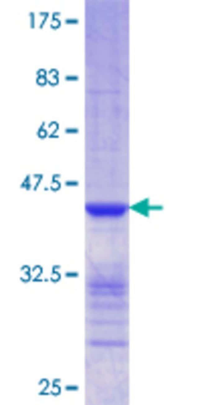 AbnovaHuman CLIC5 Partial ORF (NP_058625.2, 91 a.a. - 190 a.a.) Recombinant