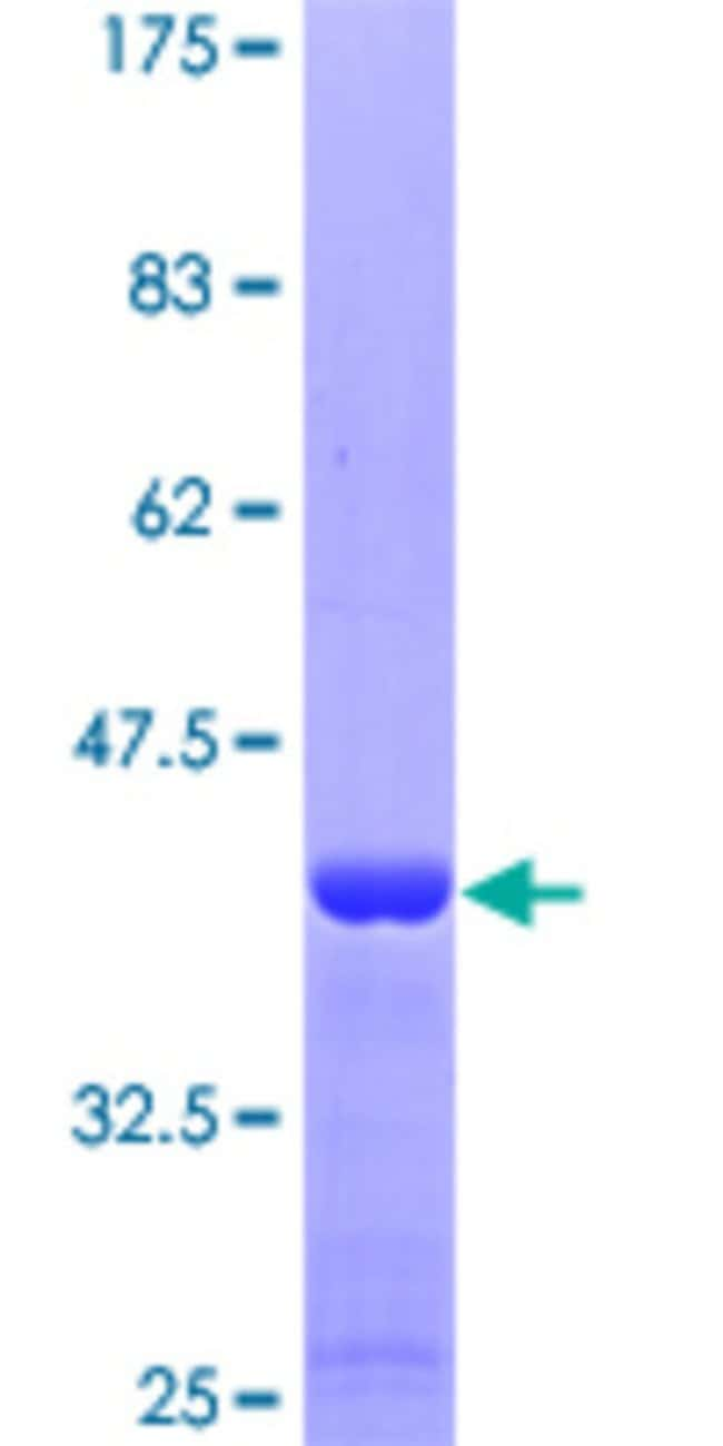 AbnovaHuman GPR84 Partial ORF (NP_065103, 208 a.a. - 316 a.a.) Recombinant