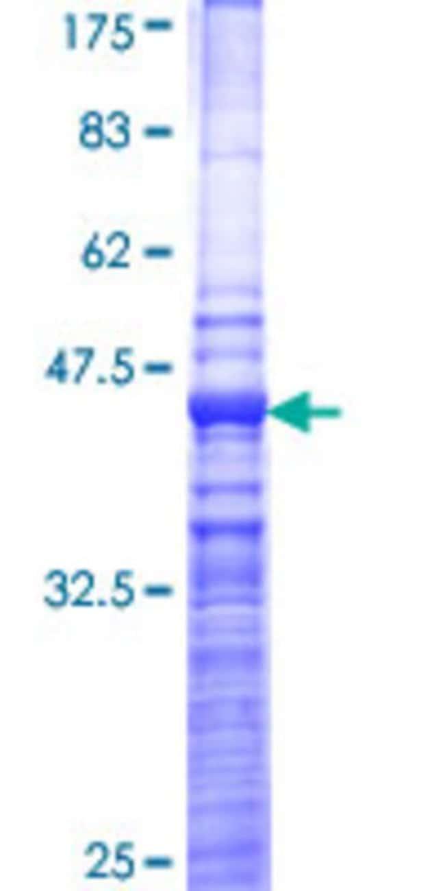 AbnovaHuman FGFRL1 Partial ORF (NP_068742, 121 a.a. - 230 a.a.) Recombinant