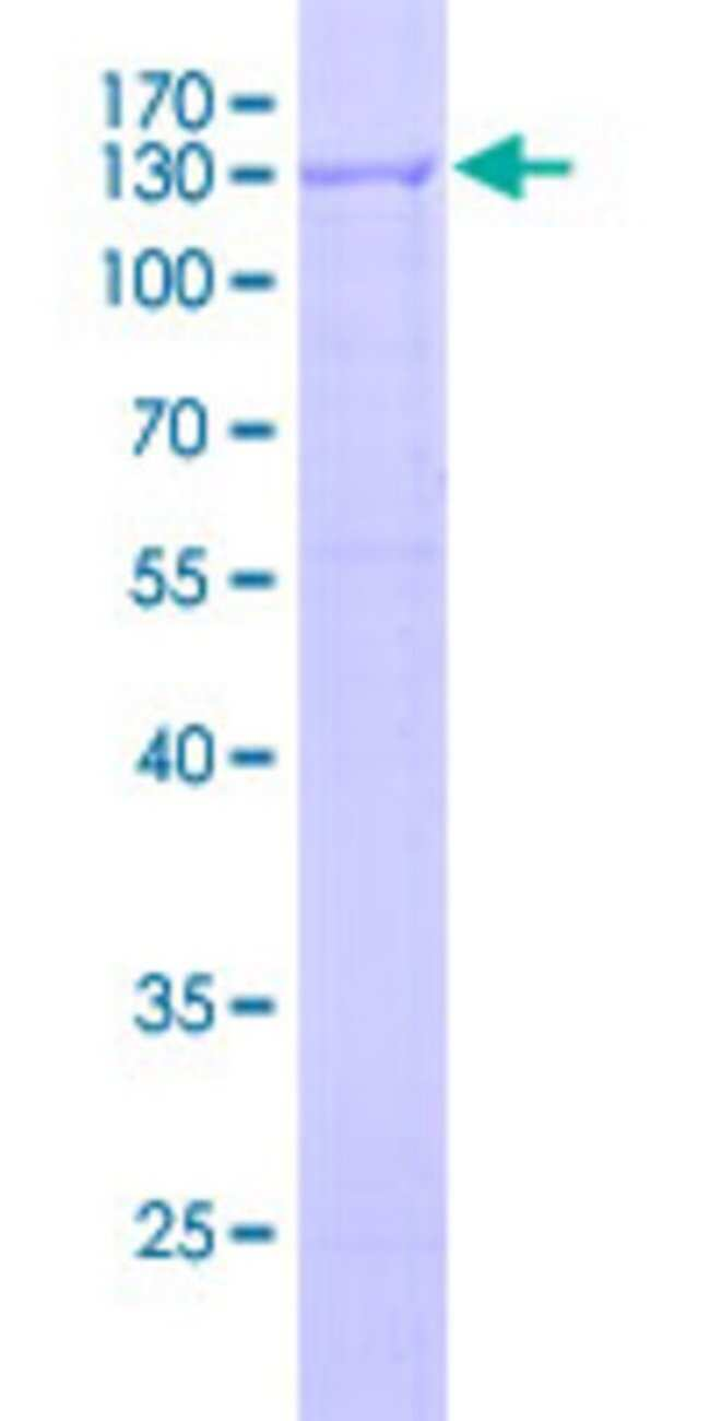 AbnovaHuman RIPK4 Full-length ORF (BAB55102.1, 1 a.a. - 784 a.a.) Recombinant