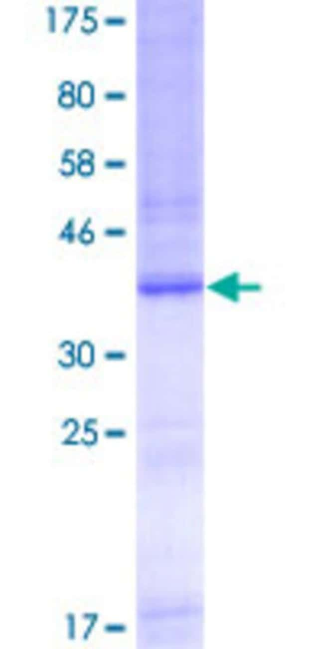 AbnovaHuman TLR9 Partial ORF (AAH32713, 99 a.a. - 215 a.a.) Recombinant