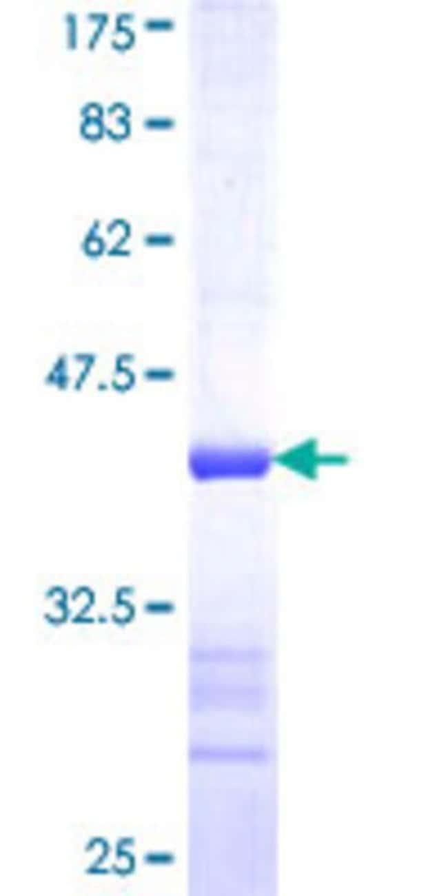 AbnovaHuman NANS Partial ORF (NP_061819, 260 a.a. - 359 a.a.) Recombinant
