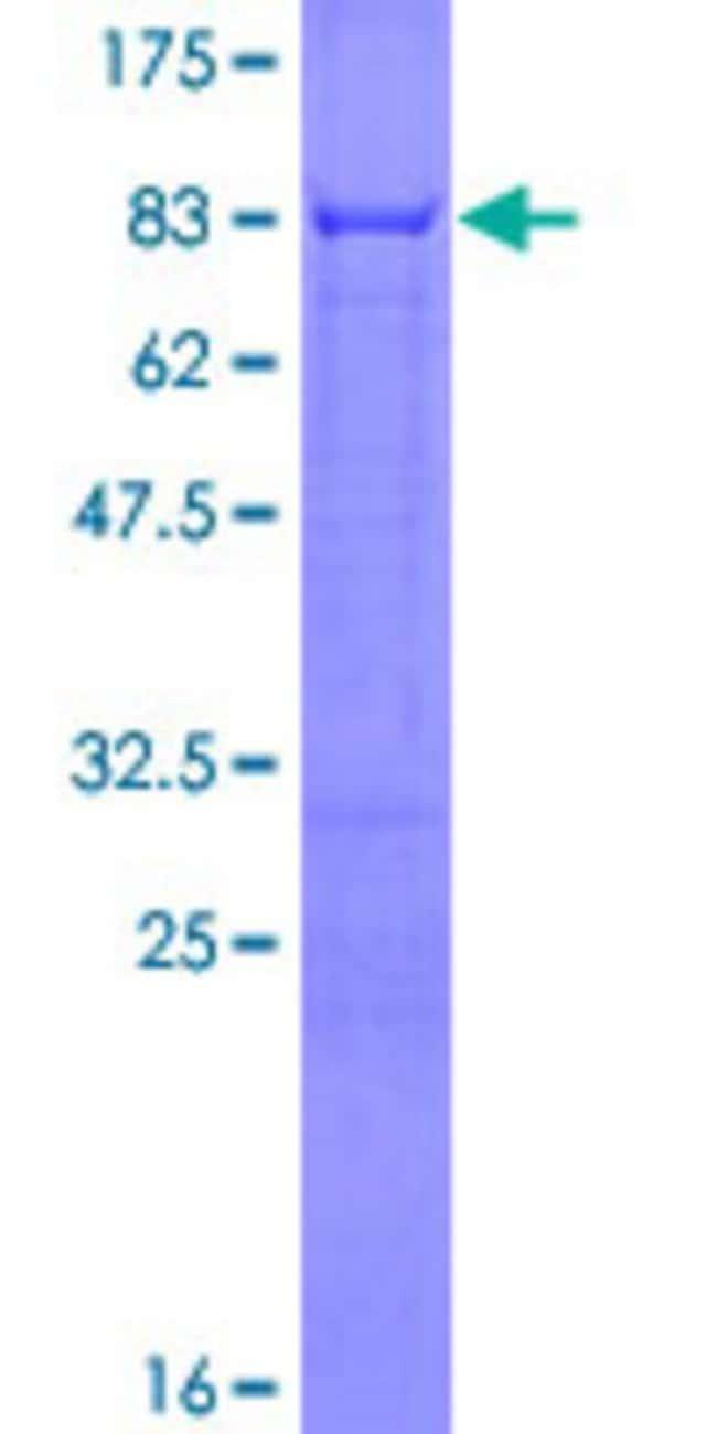 AbnovaHuman ERRFI1 Full-length ORF (NP_061821.1, 1 a.a. - 462 a.a.) Recombinant