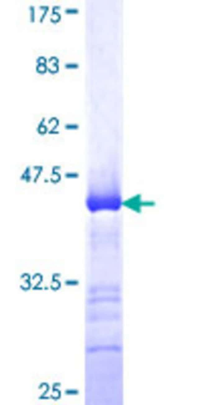 Abnova Human KCNK10 Partial ORF (NP_066984, 439 a.a. - 538 a.a.) Recombinant