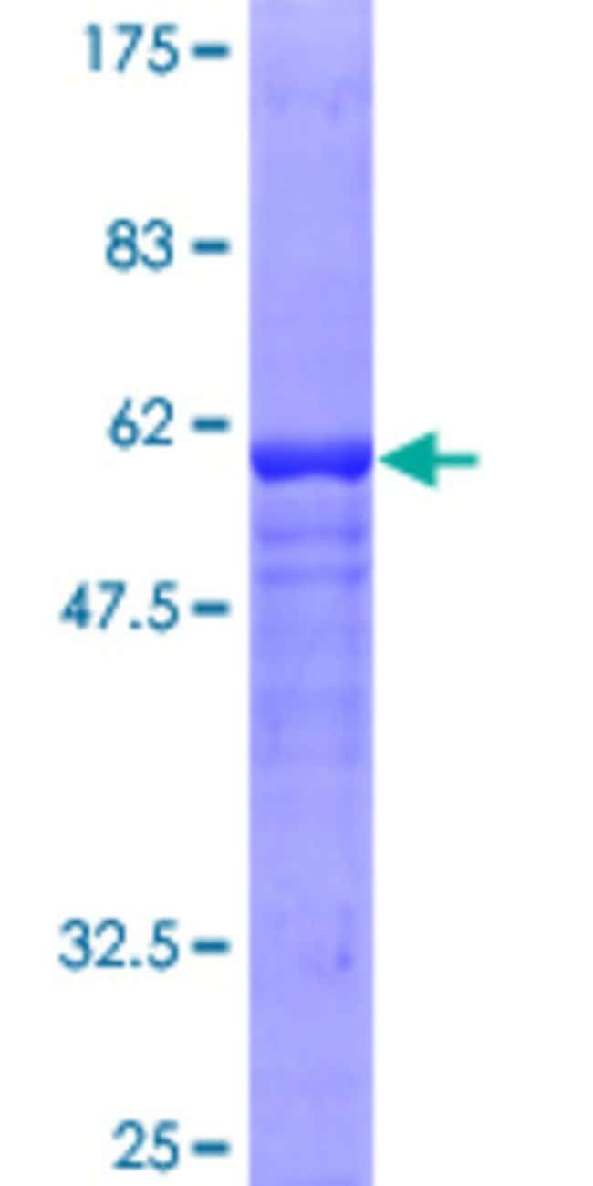 Abnova™ Human GDAP1 Full-length ORF (AAH24939, 1 a.a. - 290 a.a.) Recombinant Protein with GST-tag at N-terminal 10μg Abnova™ Human GDAP1 Full-length ORF (AAH24939, 1 a.a. - 290 a.a.) Recombinant Protein with GST-tag at N-terminal