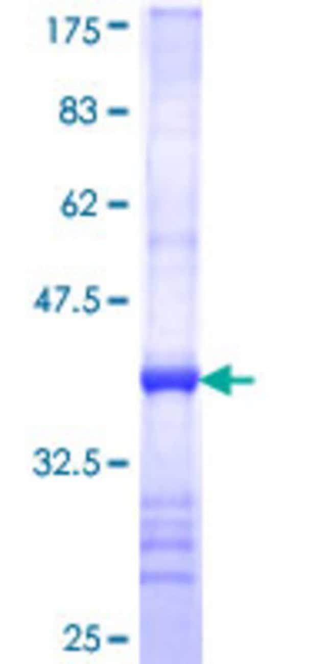 AbnovaHuman GDAP1 Partial ORF (NP_061845, 158 a.a. - 257 a.a.) Recombinant