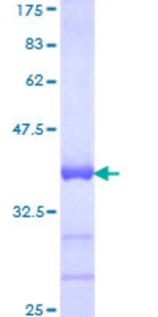AbnovaHuman SOX18 Partial ORF (NP_060889, 63 a.a. - 150 a.a.) Recombinant