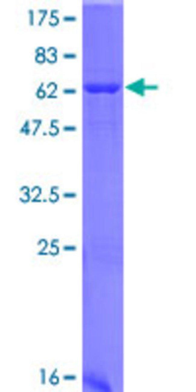 AbnovaHuman HAO1 Full-length ORF (NP_060015.1, 1 a.a. - 370 a.a.) Recombinant