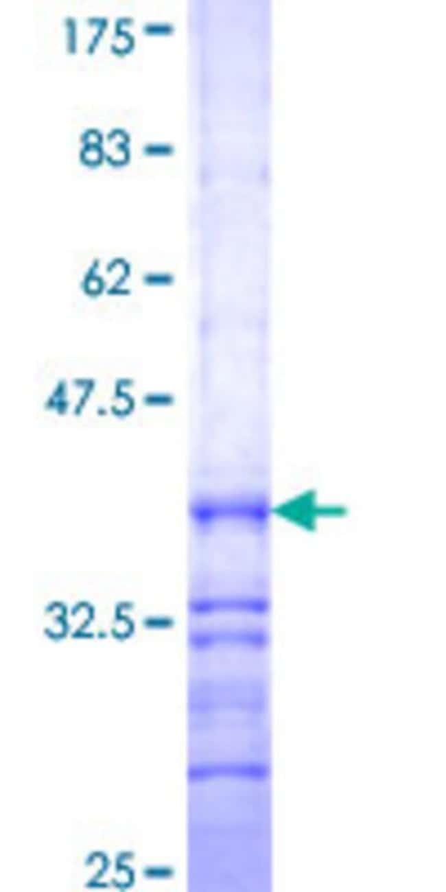 AbnovaHuman HAO1 Partial ORF (NP_060015, 1 a.a. - 100 a.a.) Recombinant