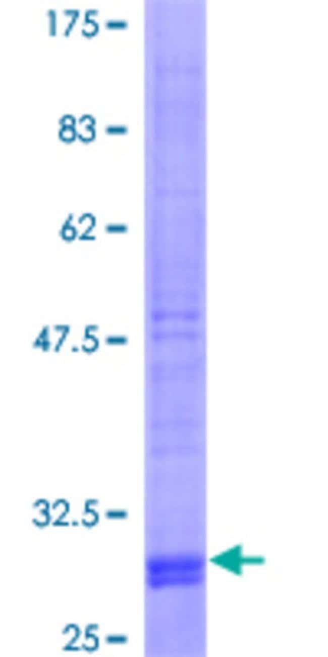 AbnovaHuman SLC38A2 Full-length ORF (AAH29379, 1 a.a. - 52 a.a.) Recombinant