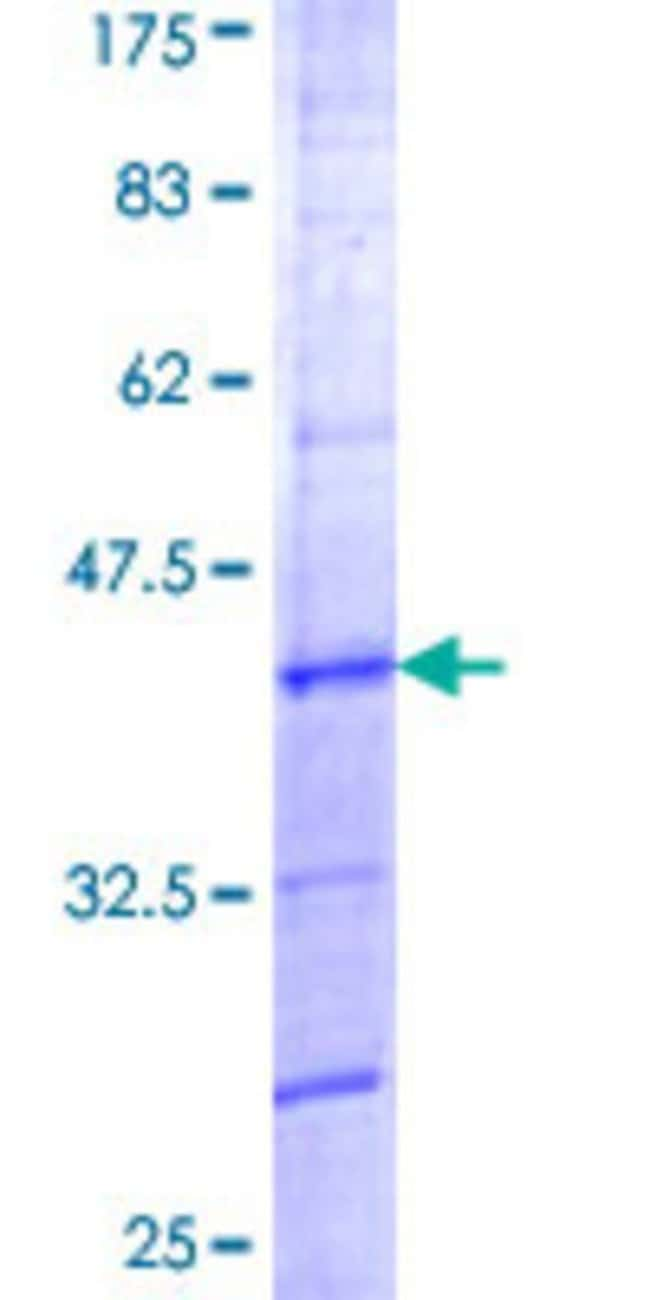 Abnova™Human NOLA1 Partial ORF (NP_127460, 60 a.a. - 150 a.a.) Recombinant Protein with GST-tag at N-terminal 25μg Abnova™Human NOLA1 Partial ORF (NP_127460, 60 a.a. - 150 a.a.) Recombinant Protein with GST-tag at N-terminal
