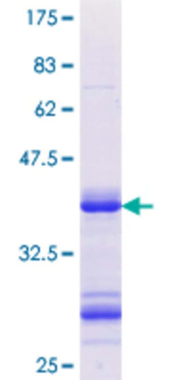 AbnovaHuman SSH1 Partial ORF (NP_061857.2, 950 a.a. - 1049 a.a.) Recombinant