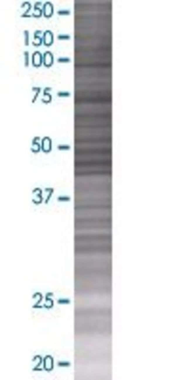 AbnovaANLN 293T Cell Transient Overexpression Lysate (Denatured) 100μL:Protein