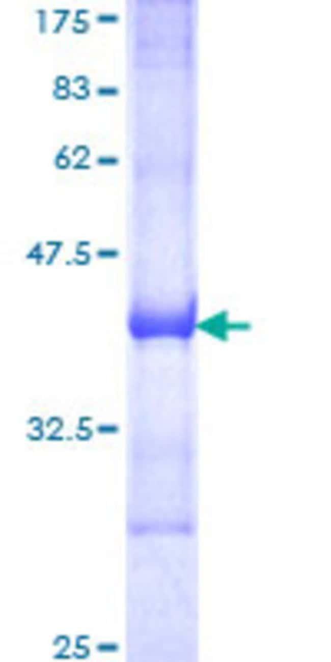 AbnovaHuman RIN2 Partial ORF (NP_061866, 786 a.a. - 894 a.a.) Recombinant
