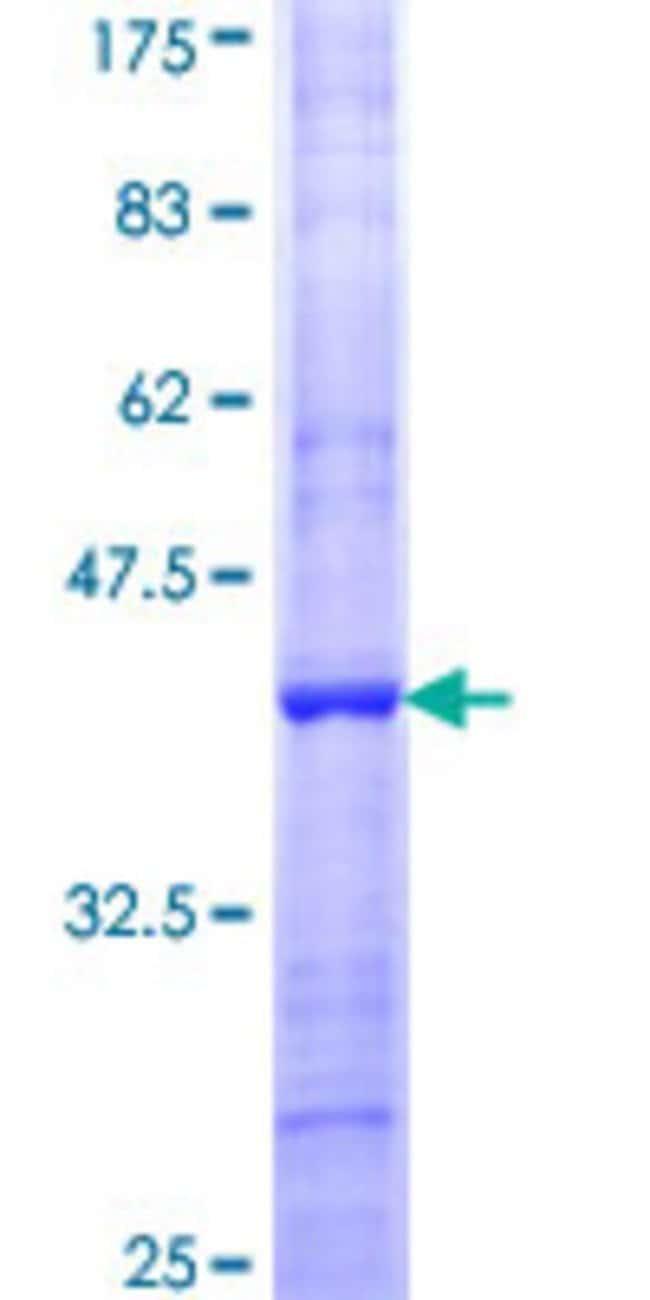 AbnovaHuman FBXO42 Partial ORF (NP_061867, 619 a.a. - 717 a.a.) Recombinant