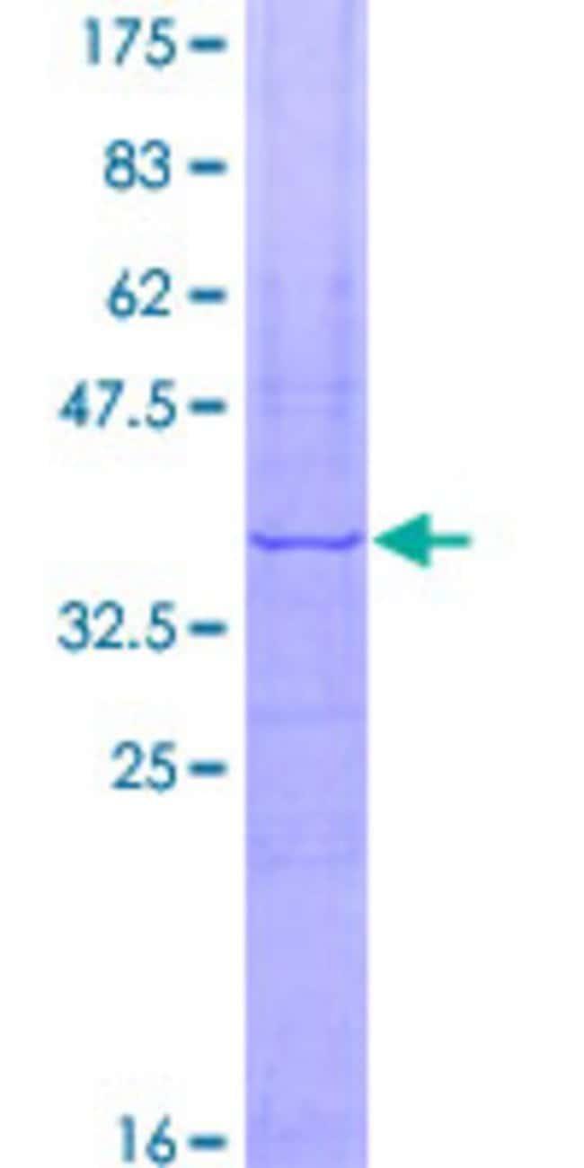 AbnovaHuman FBXW5 Partial ORF (NP_061871, 457 a.a. - 566 a.a.) Recombinant