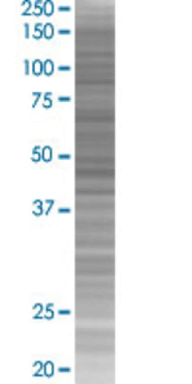 Abnova KRT20 293T Cell Transient Overexpression Lysate (Denatured) 100µL:Life