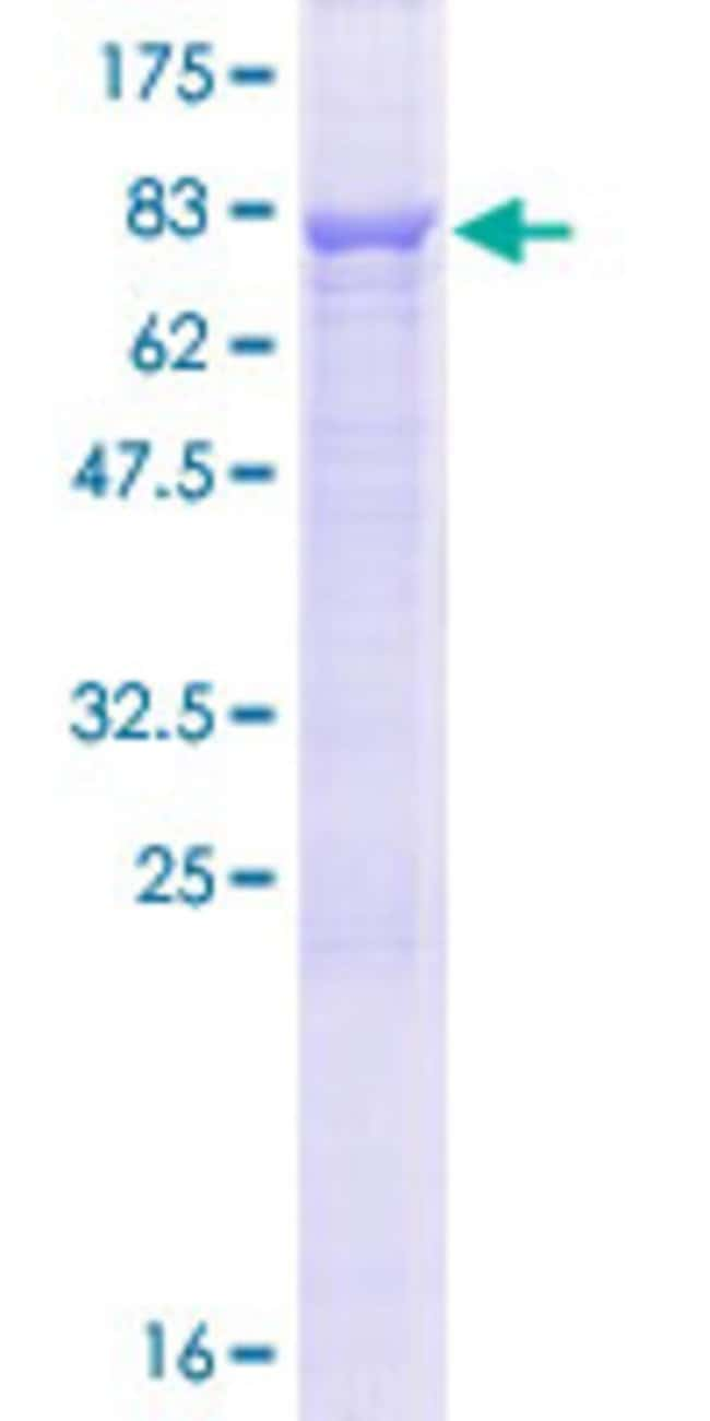 Abnova™Human CCDC76 Full-length ORF (NP_061956.1, 1 a.a. - 481 a.a.) Recombinant Protein with GST-tag at N-terminal 10μg Abnova™Human CCDC76 Full-length ORF (NP_061956.1, 1 a.a. - 481 a.a.) Recombinant Protein with GST-tag at N-terminal