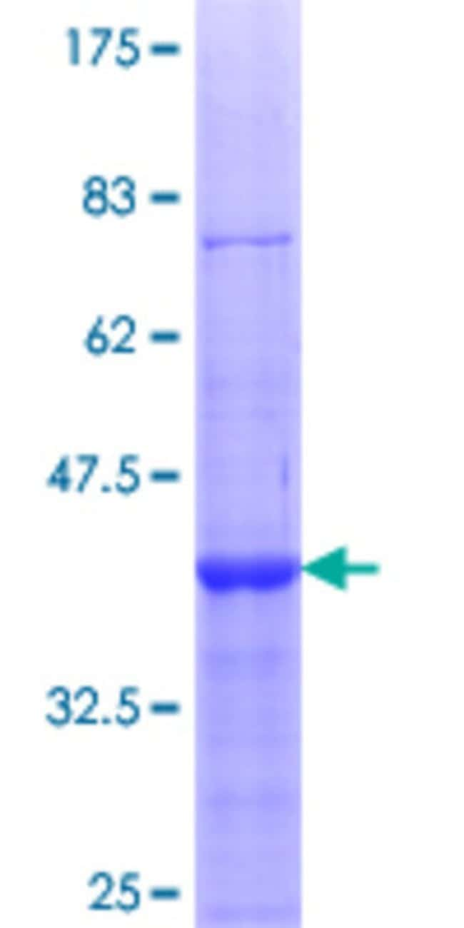 Abnova™Human EXOSC4 Partial ORF (NP_061910.1, 1 a.a. - 100 a.a.) Recombinant Protein with GST-tag at N-terminal 25μg Abnova™Human EXOSC4 Partial ORF (NP_061910.1, 1 a.a. - 100 a.a.) Recombinant Protein with GST-tag at N-terminal