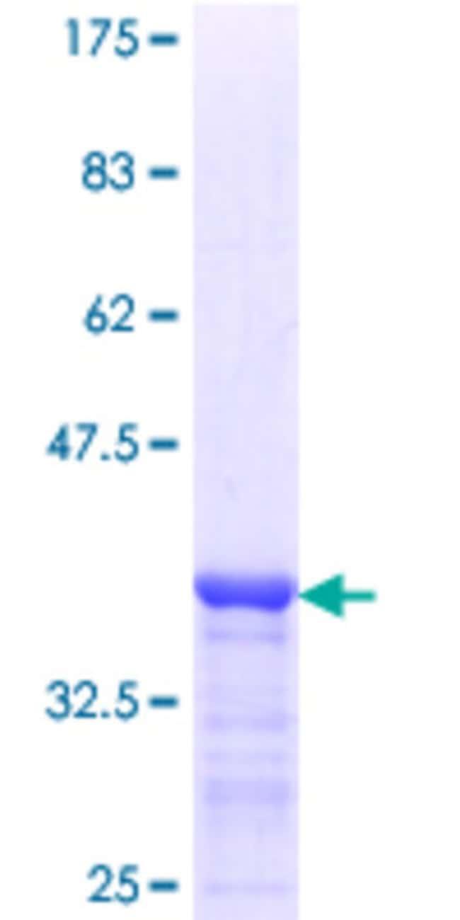 AbnovaHuman DDX4 Partial ORF (NP_061912.1, 625 a.a. - 724 a.a.) Recombinant