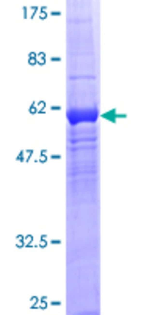 Abnova™ Human WDR5B Full-length ORF (NP_061942.2, 1 a.a. - 330 a.a.) Recombinant Protein with GST-tag at N-terminal 10μg Abnova™ Human WDR5B Full-length ORF (NP_061942.2, 1 a.a. - 330 a.a.) Recombinant Protein with GST-tag at N-terminal