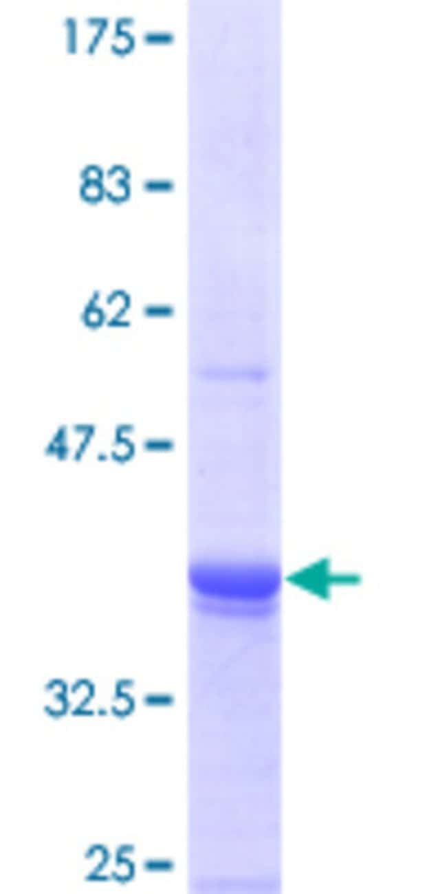 Abnova™ Human ING3 Full-length ORF (AAH09776, 1 a.a. - 92 a.a.) Recombinant Protein with GST-tag at N-terminal 10μg Abnova™ Human ING3 Full-length ORF (AAH09776, 1 a.a. - 92 a.a.) Recombinant Protein with GST-tag at N-terminal