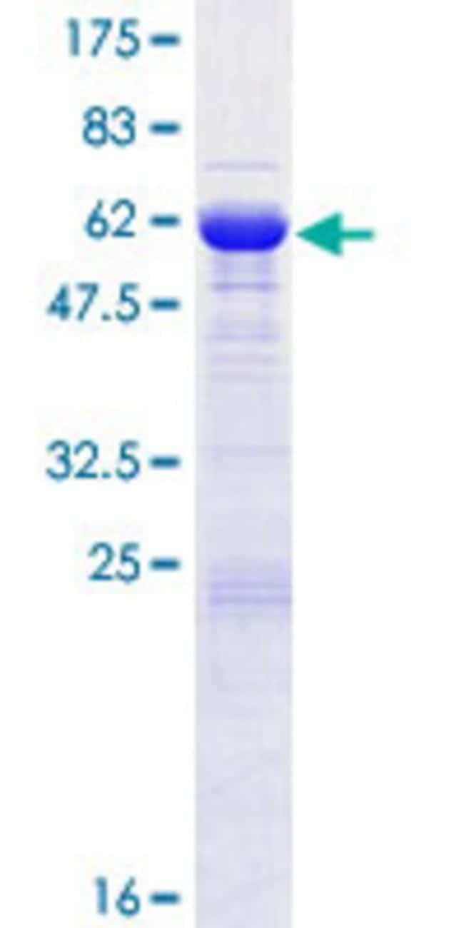 AbnovaHuman SGTB Full-length ORF (NP_061945.1, 1 a.a. - 304 a.a.) Recombinant