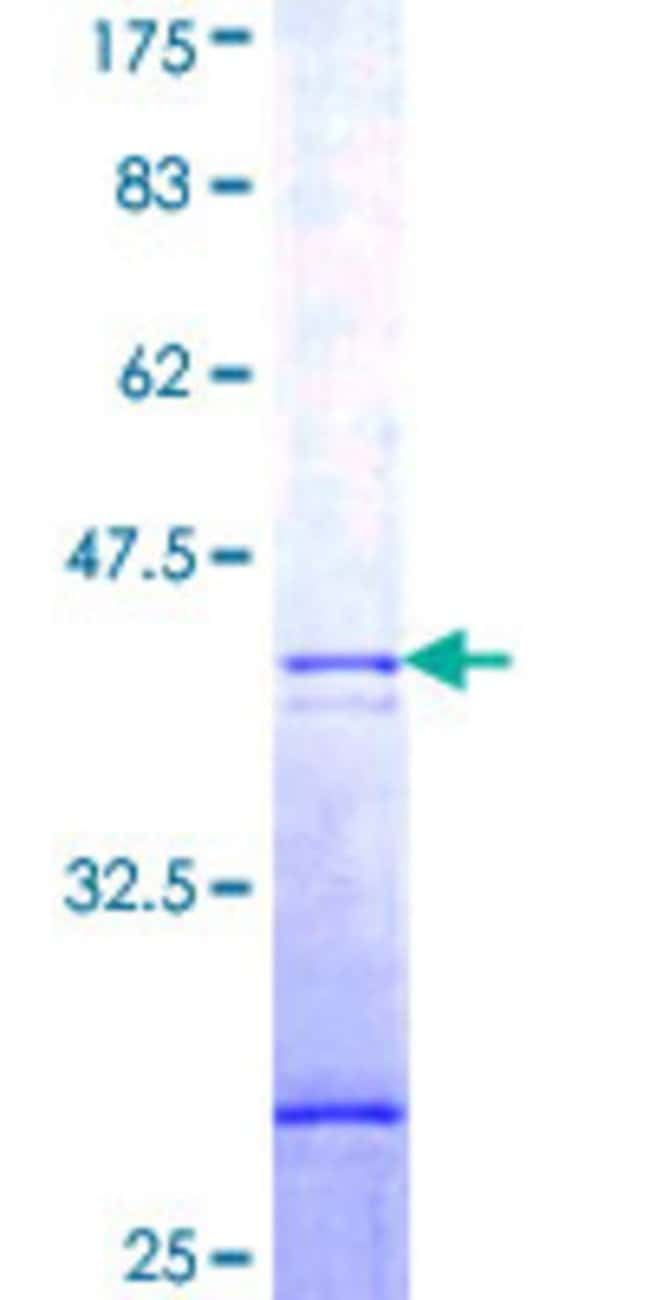 Abnova™Human GNB1L Partial ORF (NP_443730, 98 a.a. - 207 a.a.) Recombinant Protein with GST-tag at N-terminal 25μg Abnova™Human GNB1L Partial ORF (NP_443730, 98 a.a. - 207 a.a.) Recombinant Protein with GST-tag at N-terminal
