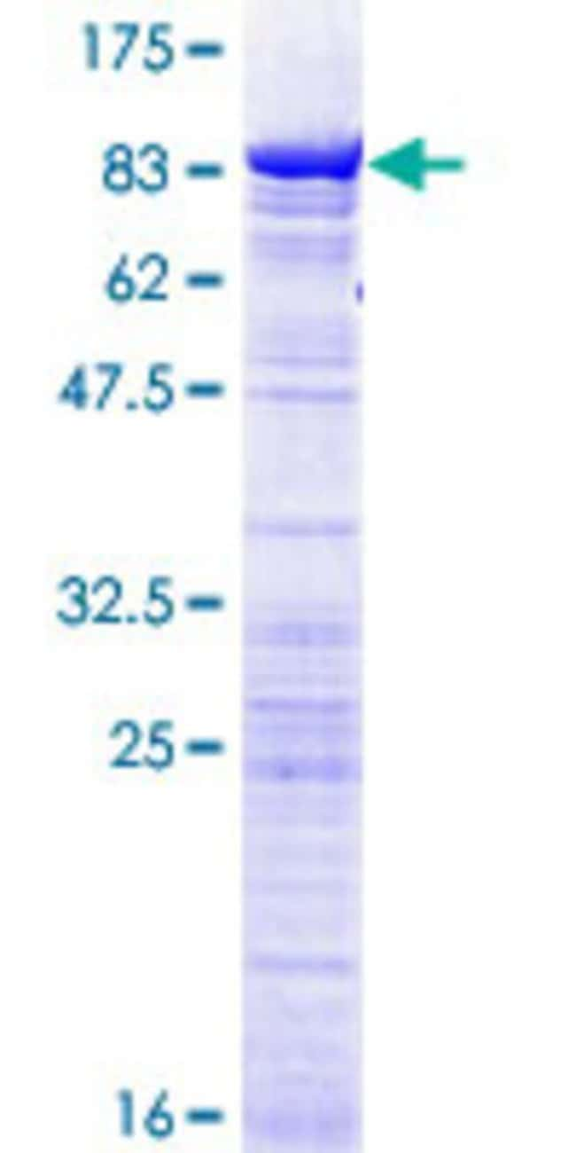 AbnovaHuman DDX56 Full-length ORF (NP_061955.1, 1 a.a. - 547 a.a.) Recombinant