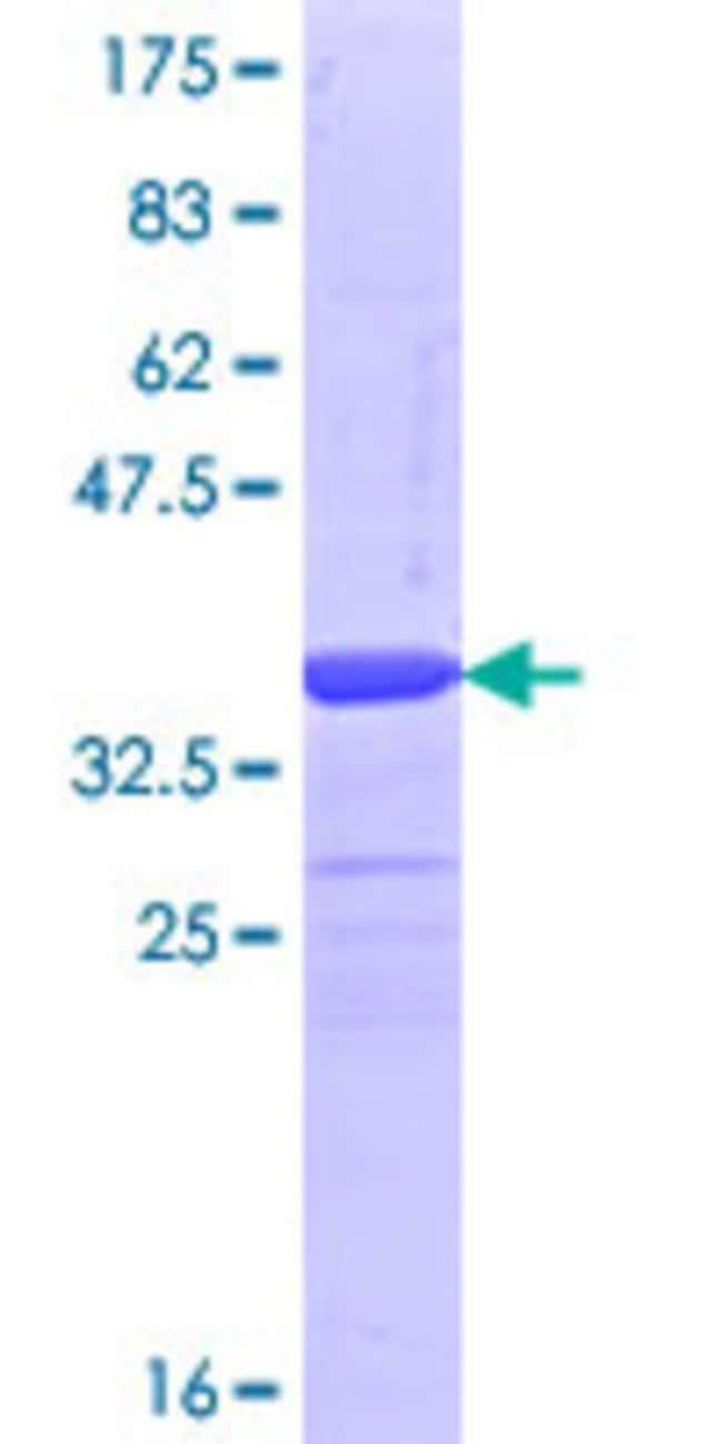 AbnovaHuman FBXL19 Partial ORF (NP_061958.1, 365 a.a. - 472 a.a.) Recombinant