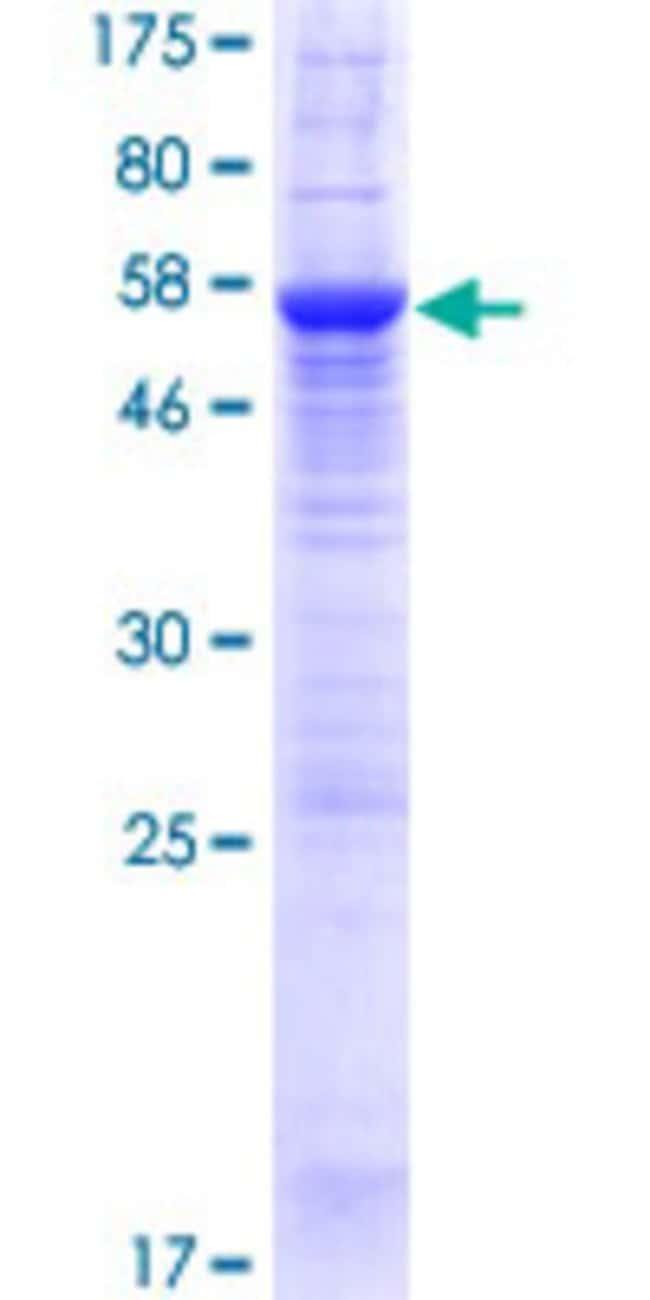 AbnovaHuman ATPBD1B Full-length ORF (AAH08634.1, 1 a.a. - 310 a.a.) Recombinant
