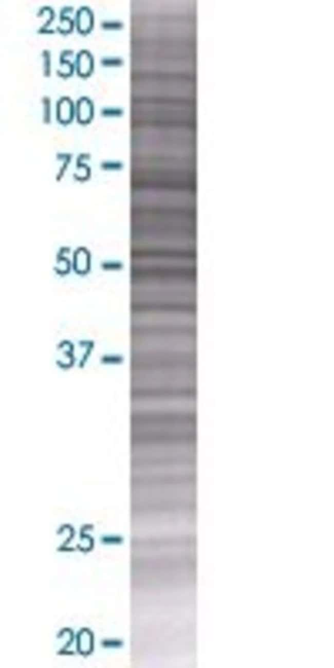 AbnovaATPBD1B 293T Cell Transient Overexpression Lysate (Denatured) 100μL:Protein