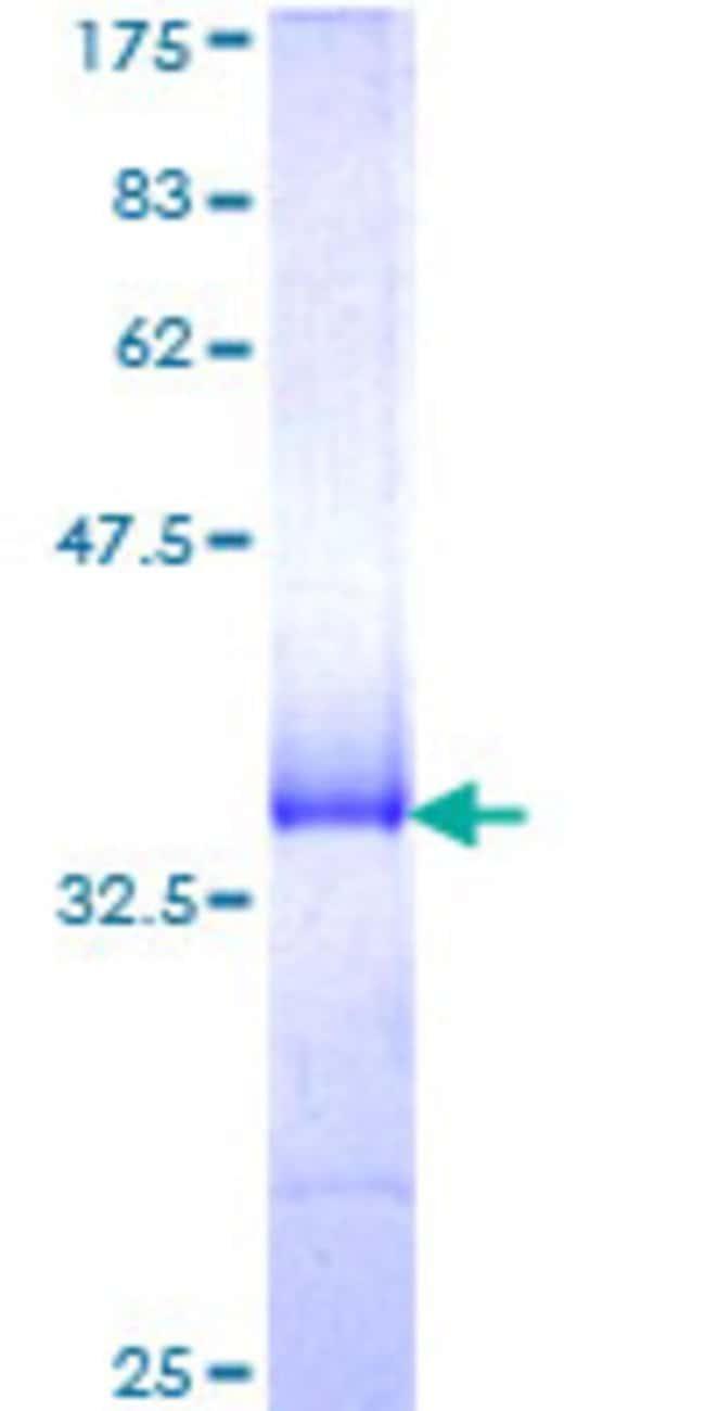 Abnova Human MARCH5 Partial ORF (NP_060294, 1 a.a. - 95 a.a.) Recombinant