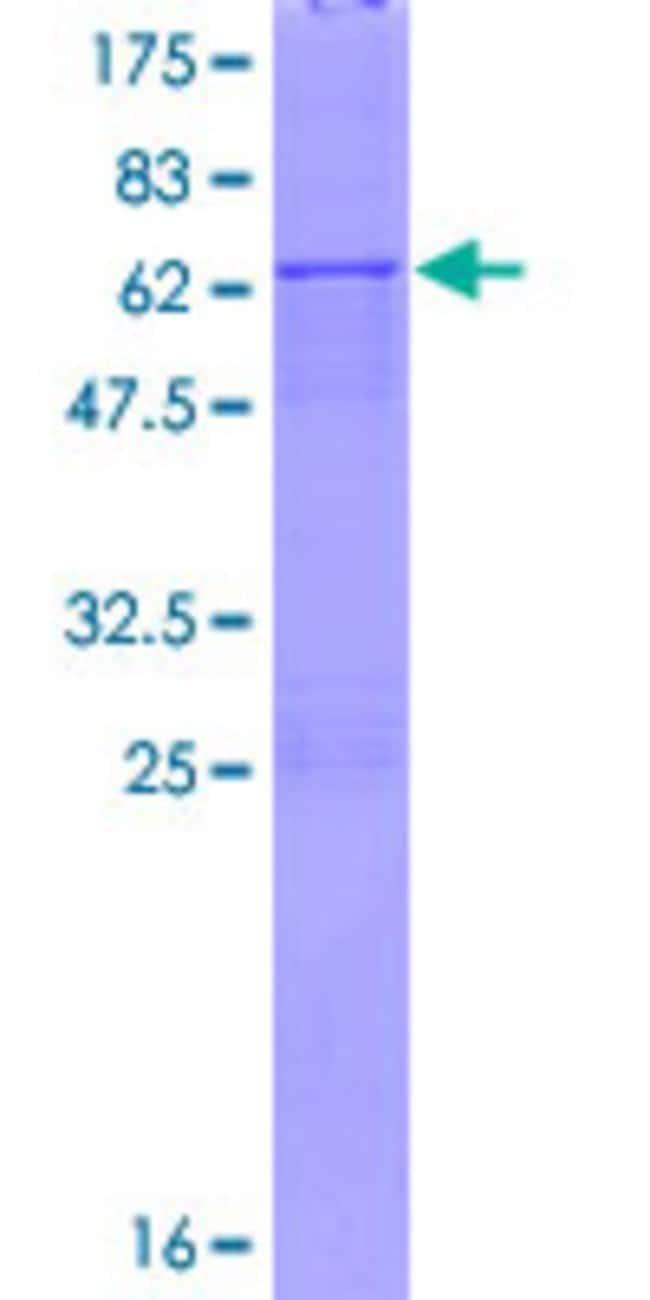 AbnovaHuman XAF1 Full-length ORF (NP_059993.2, 1 a.a. - 301 a.a.) Recombinant