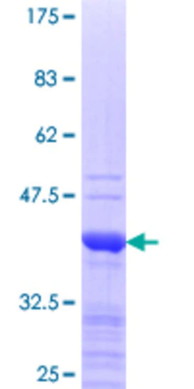 AbnovaHuman BIRC4BP Partial ORF (NP_059993.2, 202 a.a. - 301 a.a.) Recombinant