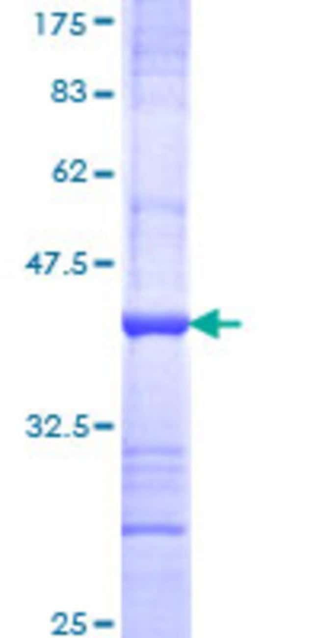 Abnova™Human IL17RD Partial ORF (NP_060033, 1 a.a. - 100 a.a.) Recombinant Protein with GST-tag at N-terminal 10μg Abnova™Human IL17RD Partial ORF (NP_060033, 1 a.a. - 100 a.a.) Recombinant Protein with GST-tag at N-terminal