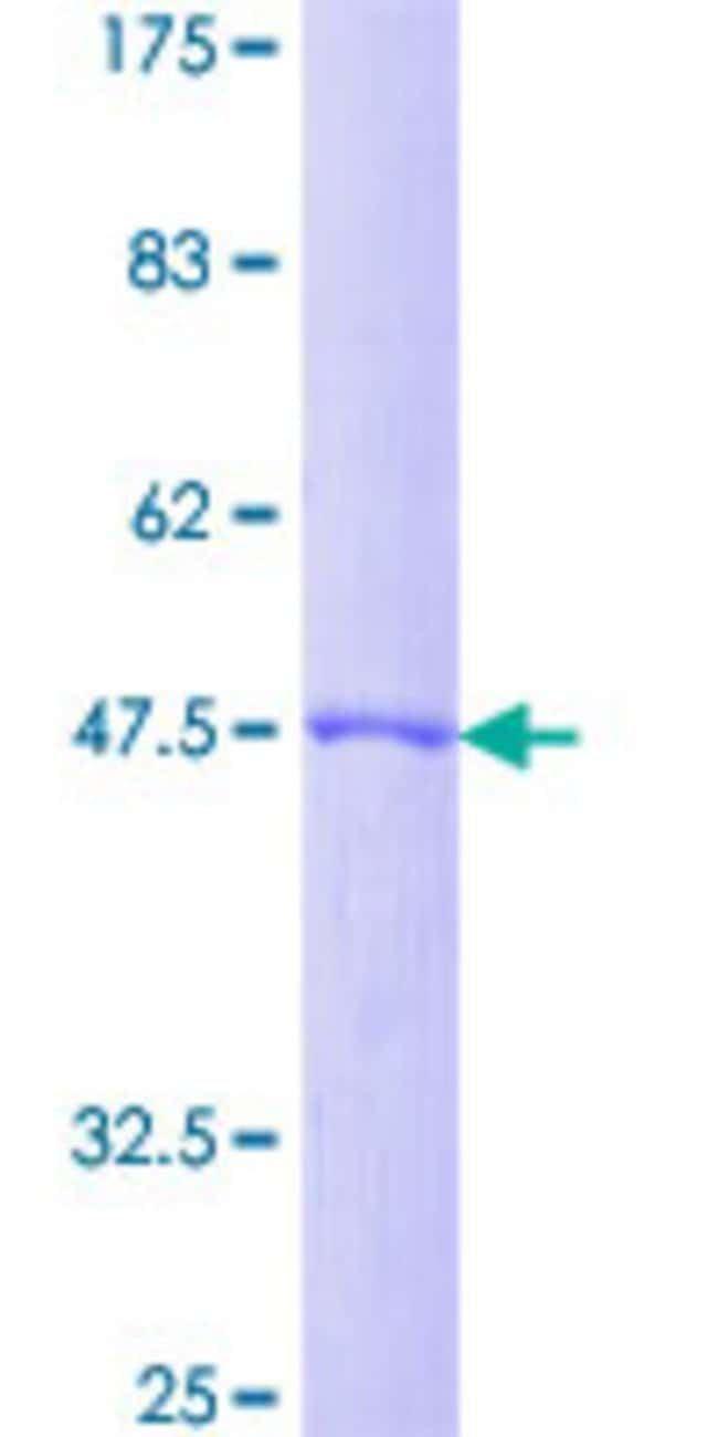 AbnovaHuman DIRAS2 Full-length ORF (NP_060064.2, 1 a.a. - 199 a.a.) Recombinant