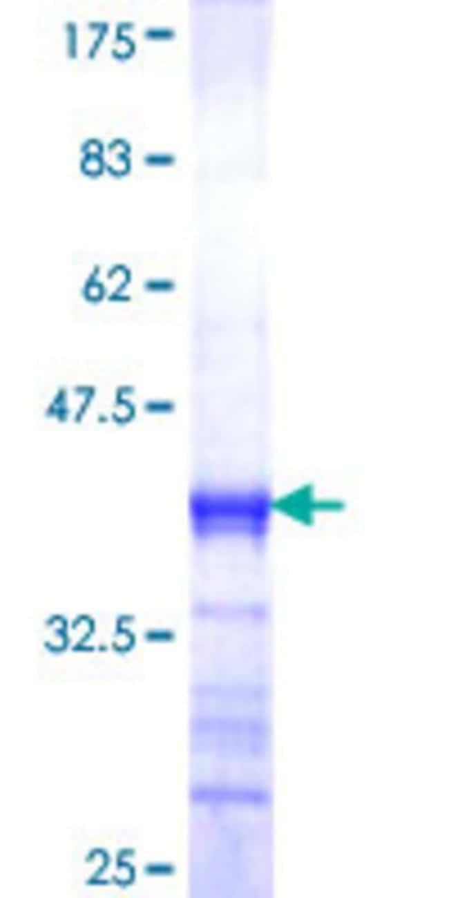 AbnovaHuman DNAJB12 Partial ORF (NP_060096, 10 a.a. - 119 a.a.) Recombinant