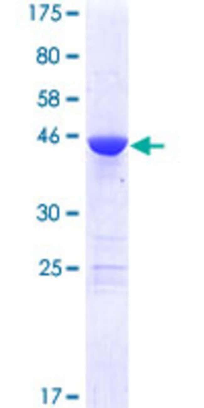 AbnovaHuman MED18 Full-length ORF (AAH02694.1, 1 a.a. - 208 a.a.) Recombinant