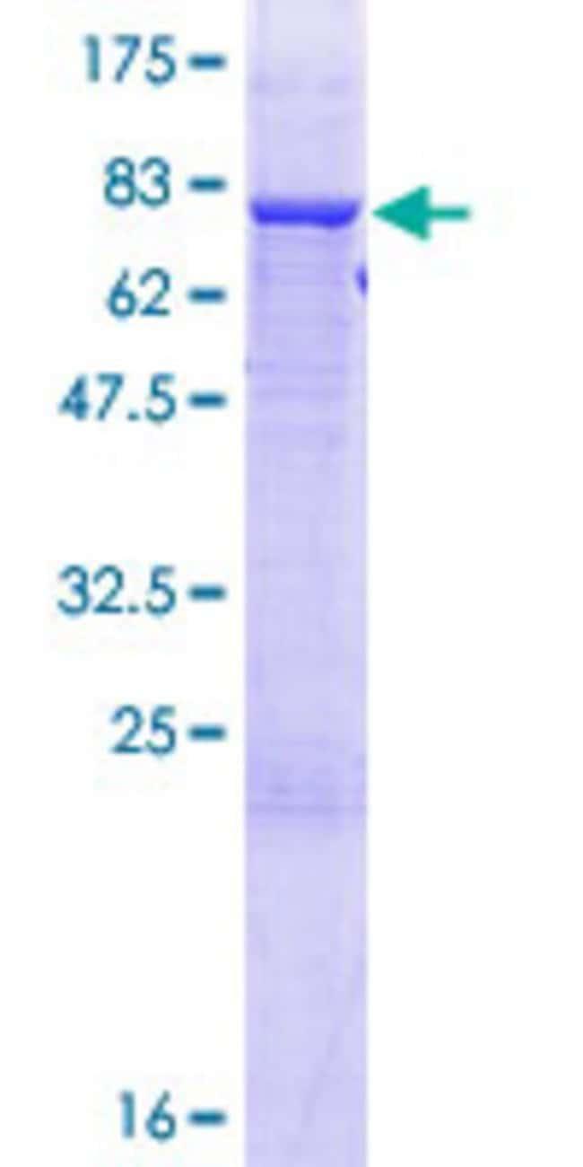 AbnovaHuman TRIT1 Full-length ORF (NP_060116.2, 1 a.a. - 467 a.a.) Recombinant