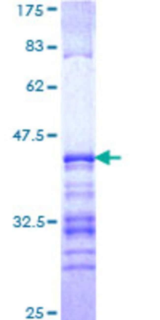AbnovaHuman GATAD2A Partial ORF (NP_060130, 26 a.a. - 134 a.a.) Recombinant