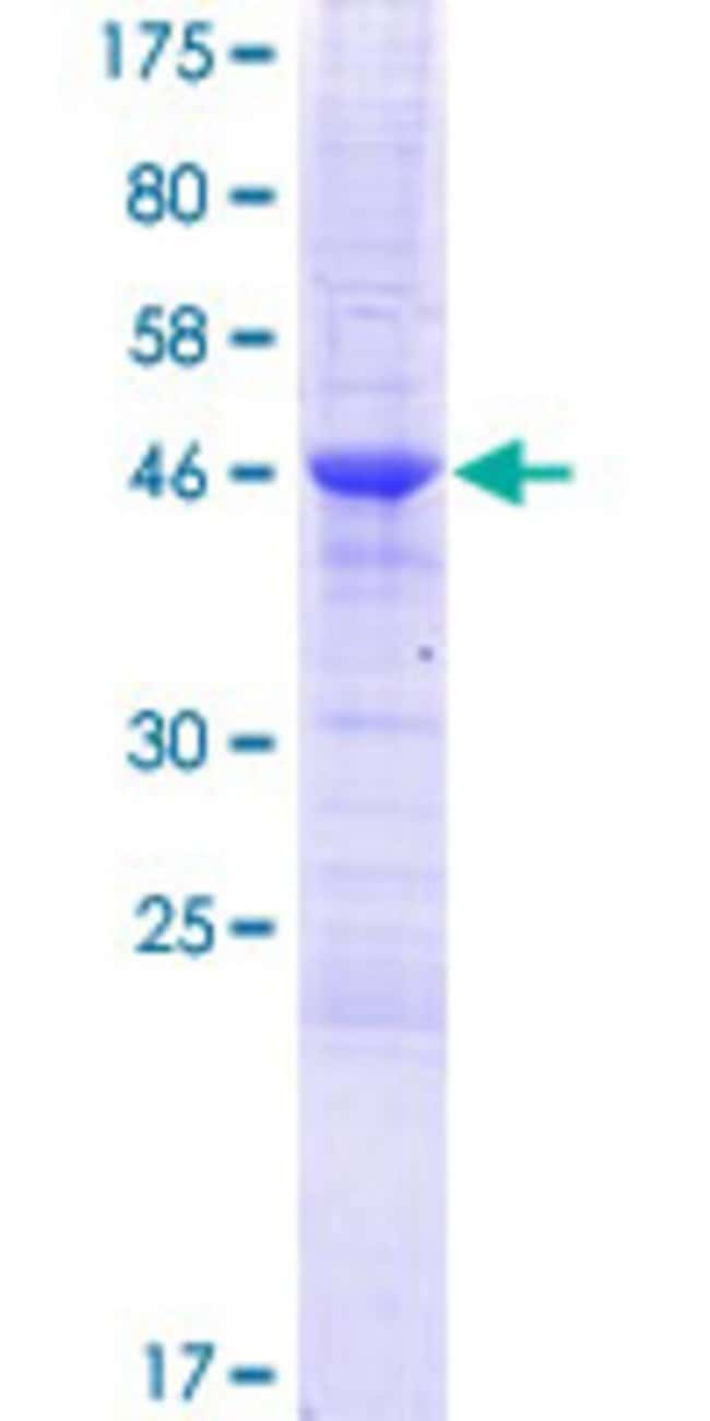 AbnovaHuman ZCCHC10 Full-length ORF (NP_060135.1, 1 a.a. - 170 a.a.) Recombinant
