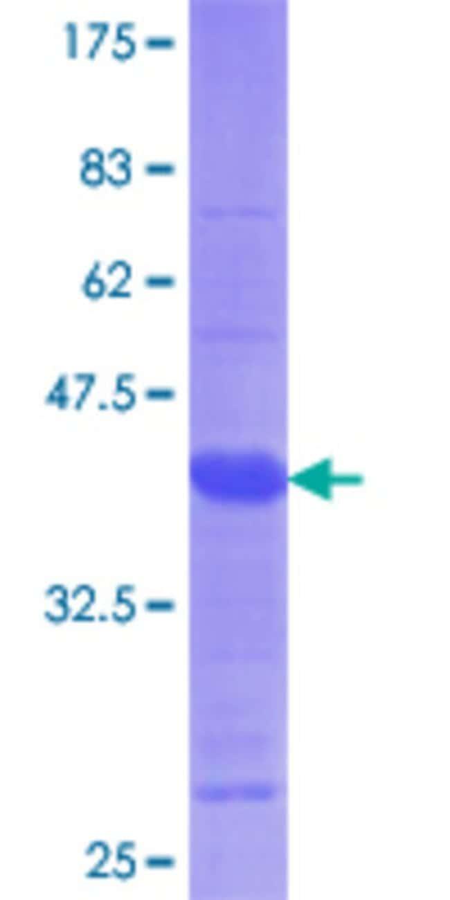 AbnovaHuman TRPM7 Partial ORF (NP_060142.2, 777 a.a. - 855 a.a.) Recombinant