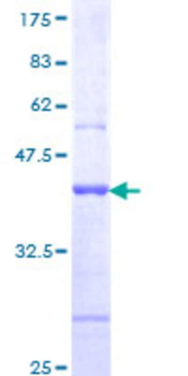 AbnovaHuman PC-LKC Partial ORF (NP_060145, 210 a.a. - 318 a.a.) Recombinant