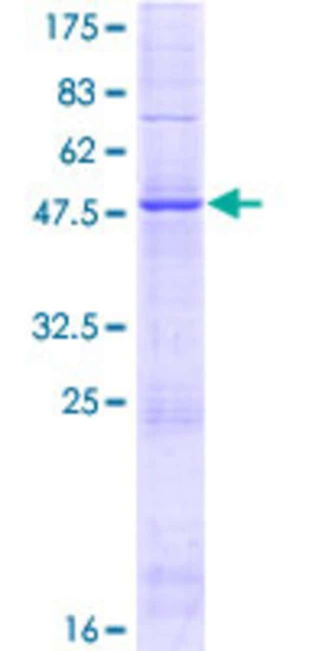 AbnovaHuman GIN1 Full-length ORF (AAH15325.1, 1 a.a. - 222 a.a.) Recombinant